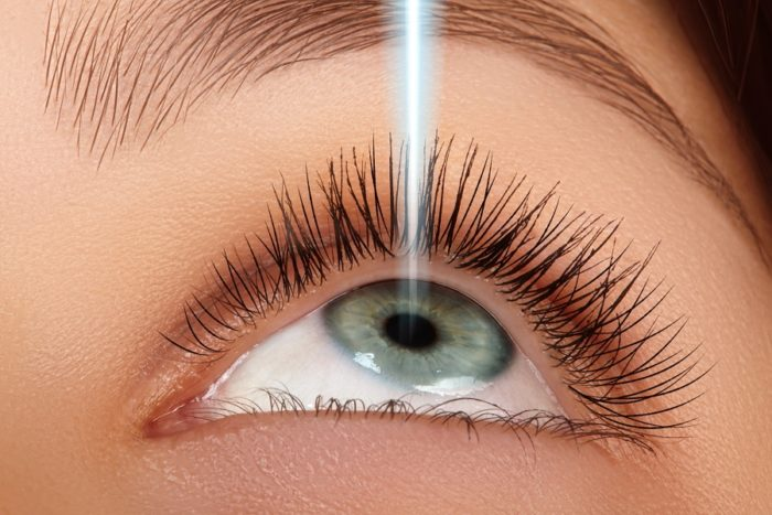 Here Are Some Side Effects of lasik surgery los angeles