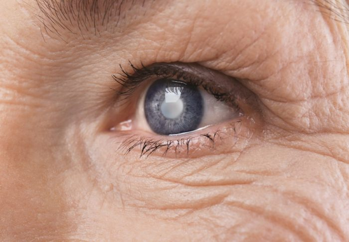 Talk To Your Eye surgeon About Cataract Surgery Los Angeles