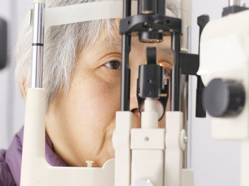 Vision 101: When is the right time to have cataract surgery in Los Angeles?