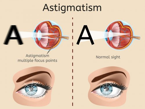 Understanding the Lasik Eye Surgery Cost for Correcting Astigmatism