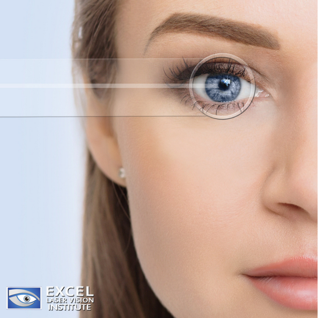 A-LASEK-procedure-is-an-option-at-the-LASIK-Eye-Center-Los-Angeles