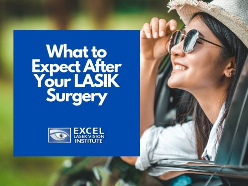 What to Expect After Your LASIK Surgery